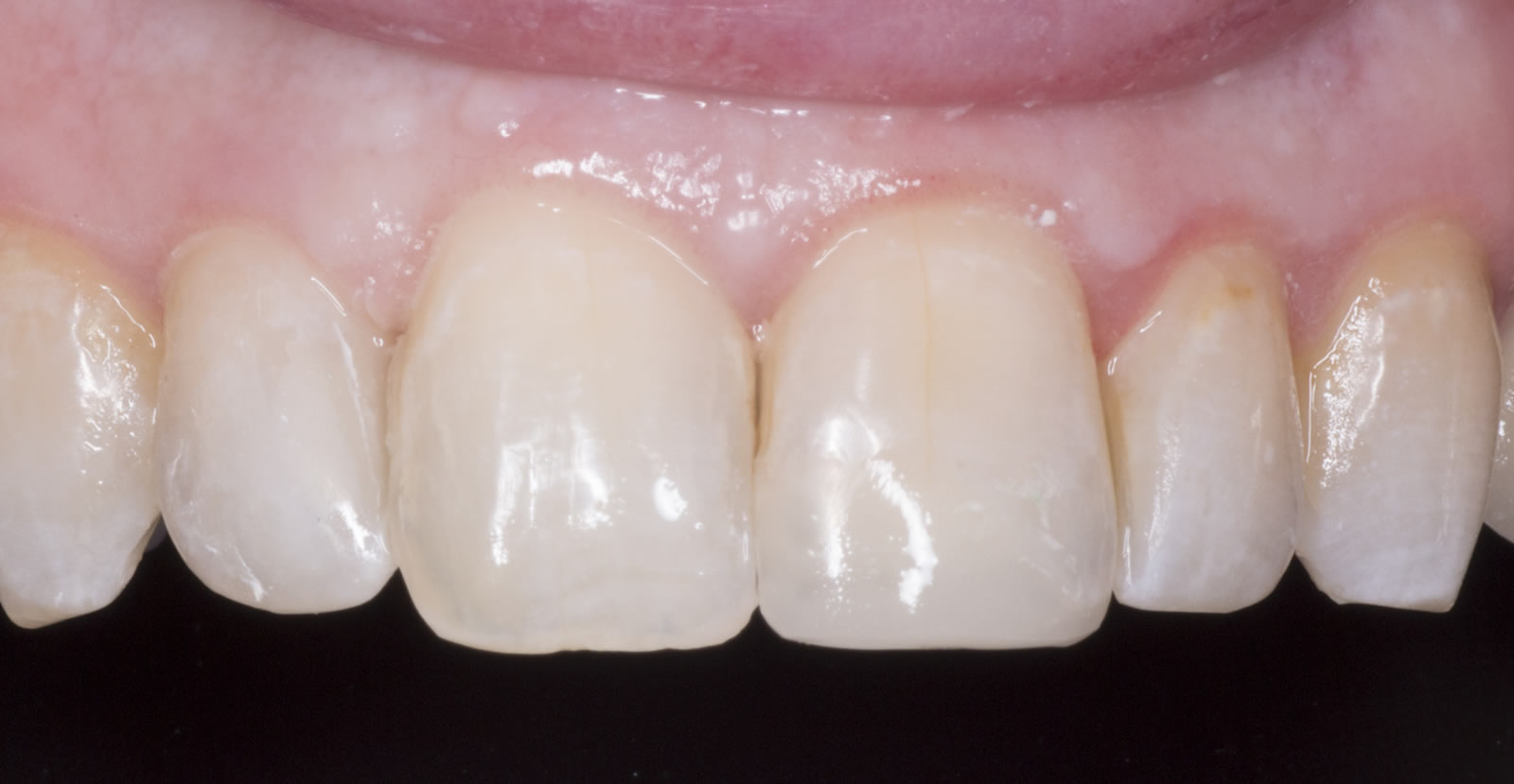 Botox in Donegal - Ardara Dental - Facial treatments and